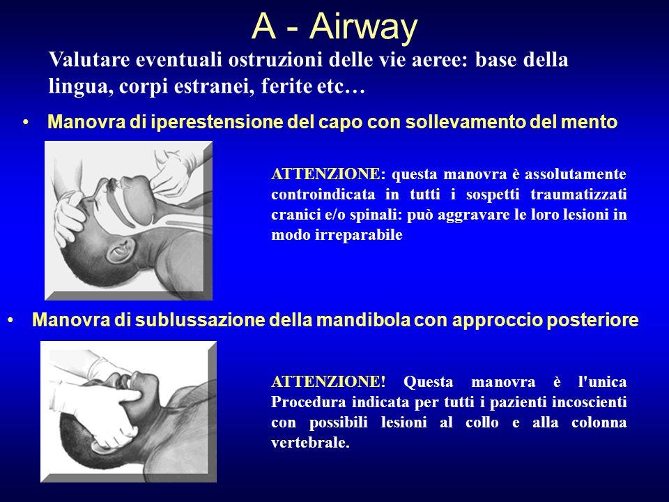 A - Airway Manovra di iperestensione del capo con sollevamento del mento Valutare eventuali ostruzioni delle vie aeree: base della lingua, corpi estra