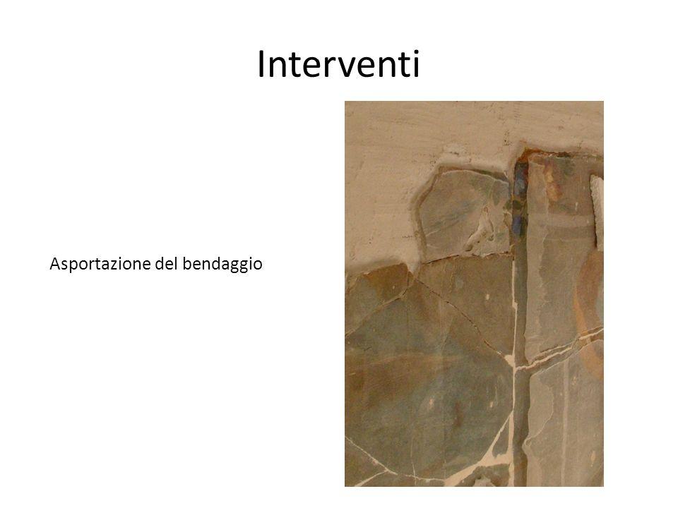 Interventi Asportazione del bendaggio