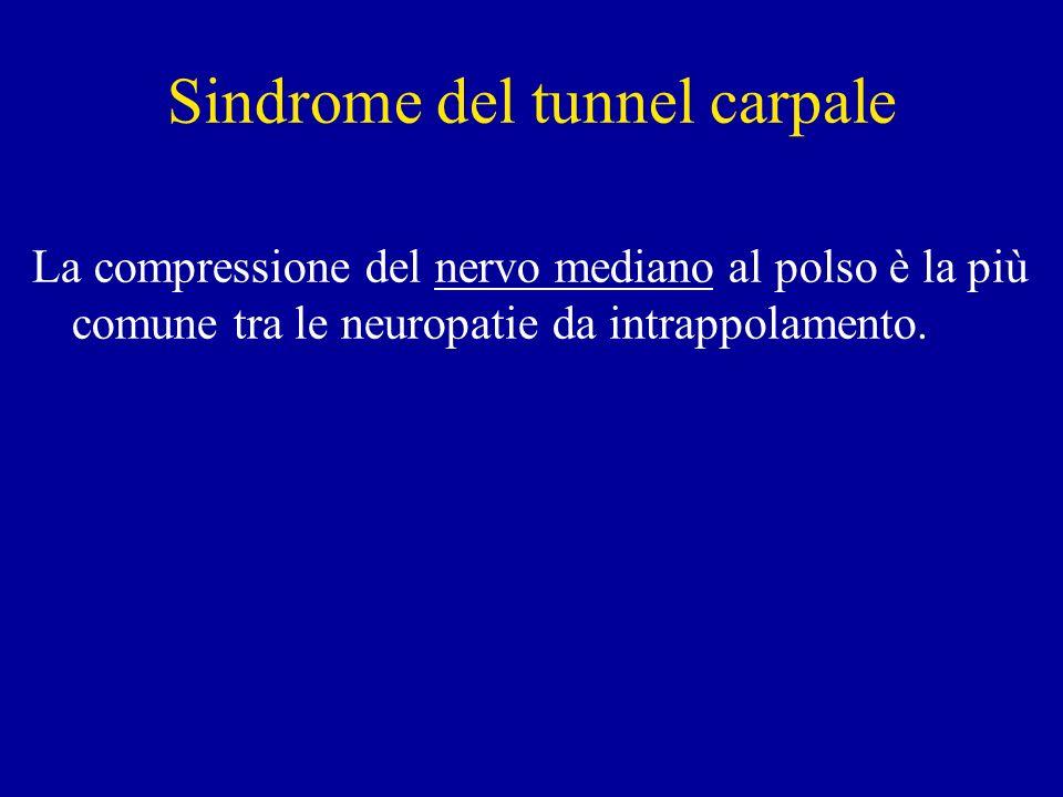 Sindrome del tunnel carpale La compressione del nervo mediano al polso è la più comune tra le neuropatie da intrappolamento.