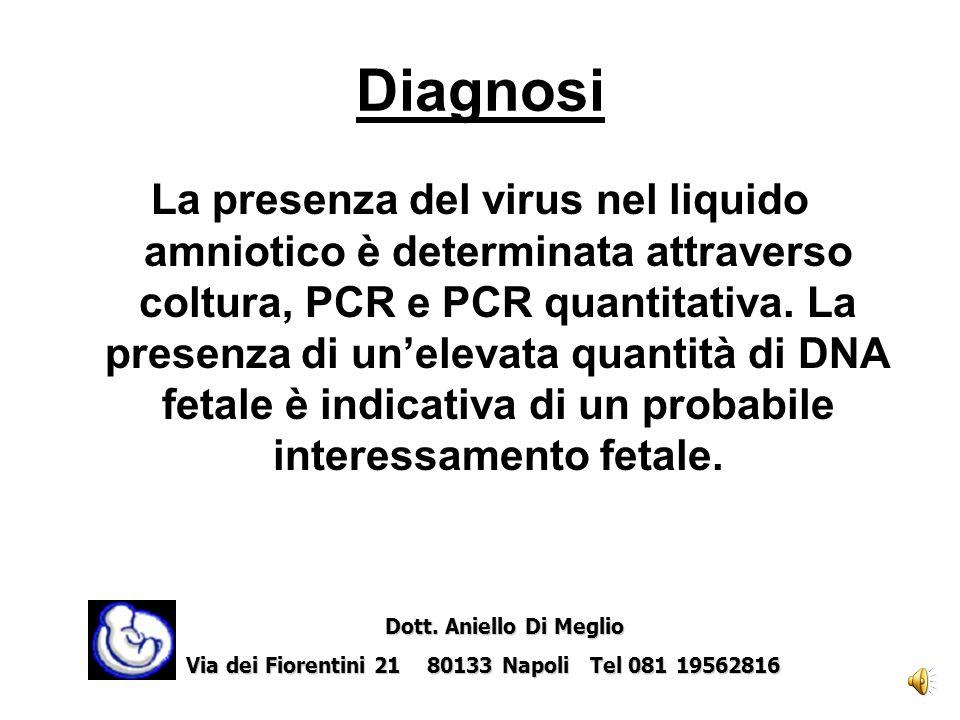 Diagnosi Quando la diagnosi di infezione materna è confermata (presenza nel siero della gestante di anticorpi anti-CMV IgM e bassi titoli di anticorpi