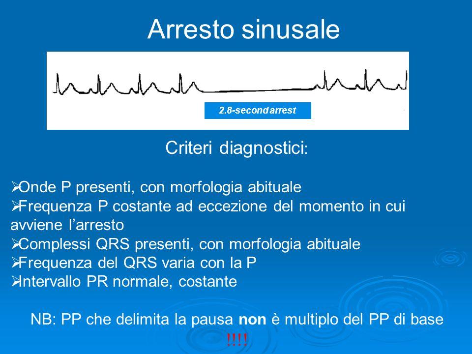 Arresto sinusale 2.8-second arrest Criteri diagnostici : Onde P presenti, con morfologia abituale Frequenza P costante ad eccezione del momento in cui
