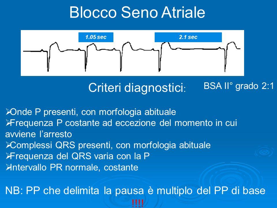 2.1 sec Blocco Seno Atriale BSA II° grado 2:1 1.05 sec Criteri diagnostici : Onde P presenti, con morfologia abituale Frequenza P costante ad eccezion