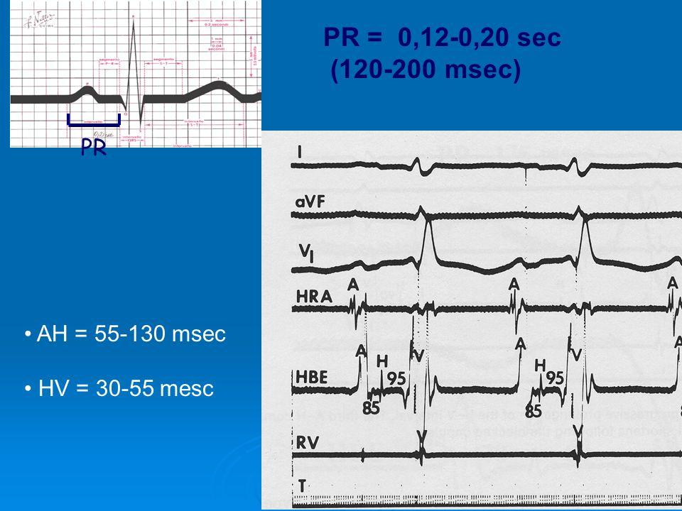 AH = 55-130 msec HV = 30-55 mesc PR PR = 0,12-0,20 sec (120-200 msec)