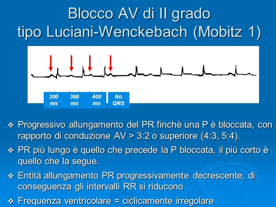 Blocco AV di II grado tipo Luciani-Wenckebach (Mobitz 1) Progressivo allungamento del PR finchè una P è bloccata, con rapporto di conduzione AV > 3:2