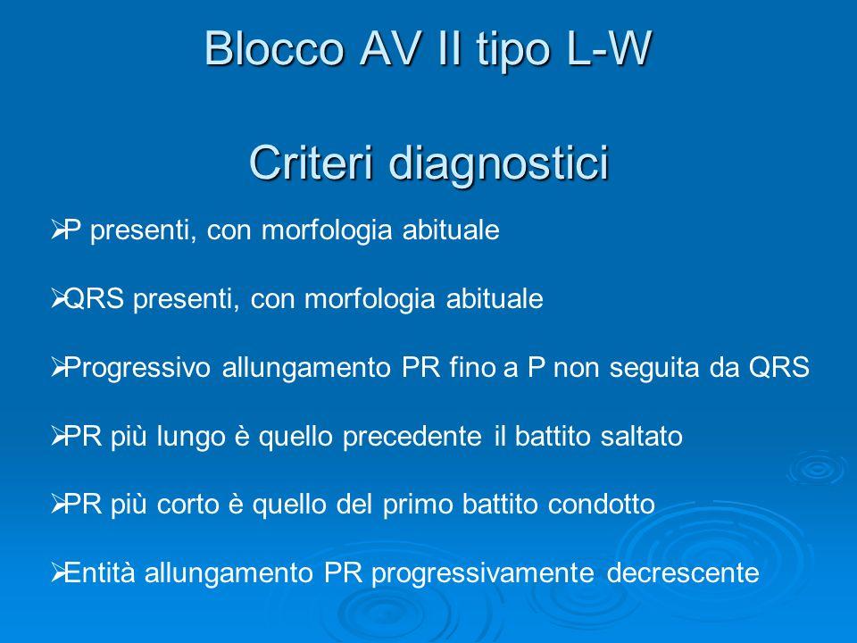 Blocco AV II tipo L-W Criteri diagnostici P presenti, con morfologia abituale QRS presenti, con morfologia abituale Progressivo allungamento PR fino a
