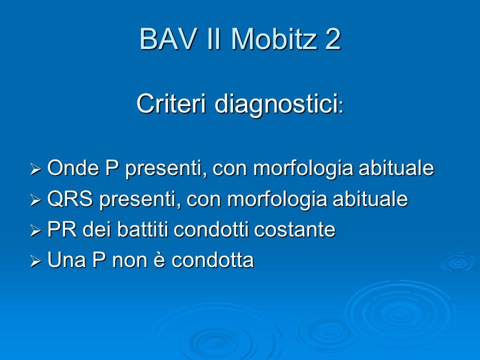 BAV II Mobitz 2 Criteri diagnostici : Onde P presenti, con morfologia abituale Onde P presenti, con morfologia abituale QRS presenti, con morfologia a