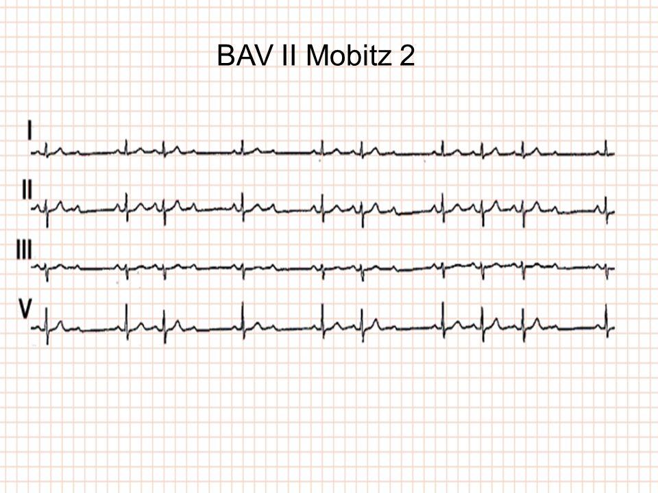 BAV II Mobitz 2