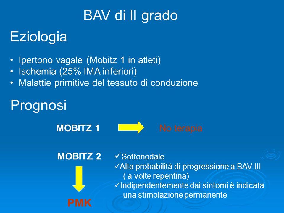 BAV di II grado Eziologia Ipertono vagale (Mobitz 1 in atleti) Ischemia (25% IMA inferiori) Malattie primitive del tessuto di conduzione Prognosi MOBI