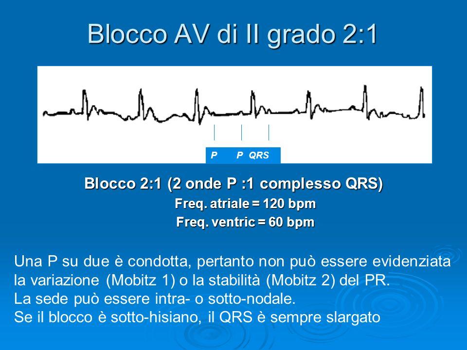 Blocco AV di II grado 2:1 Blocco 2:1 (2 onde P :1 complesso QRS) Freq. atriale = 120 bpm Freq. ventric = 60 bpm P PQRS Una P su due è condotta, pertan