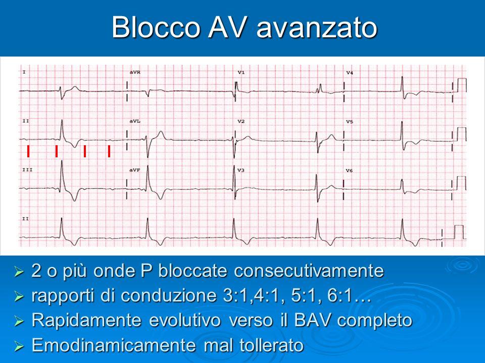Blocco AV avanzato 2 o più onde P bloccate consecutivamente 2 o più onde P bloccate consecutivamente rapporti di conduzione 3:1,4:1, 5:1, 6:1… rapport