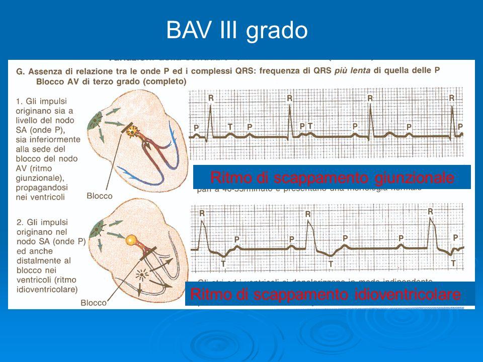 BAV III grado Ritmo di scappamento giunzionale Ritmo di scappamento idioventricolare