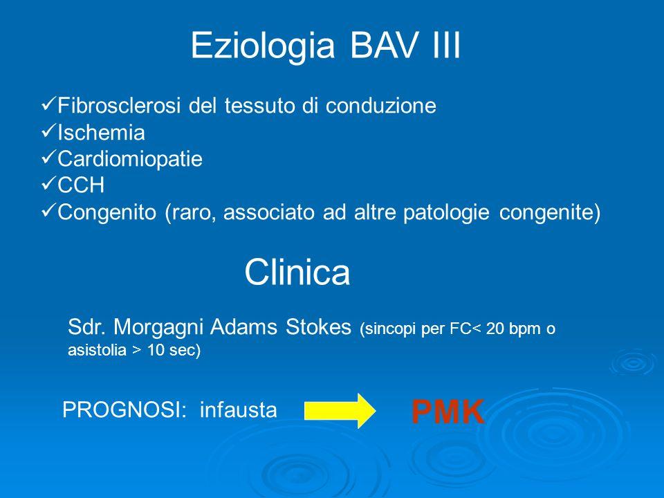 Eziologia BAV III Fibrosclerosi del tessuto di conduzione Ischemia Cardiomiopatie CCH Congenito (raro, associato ad altre patologie congenite) Clinica