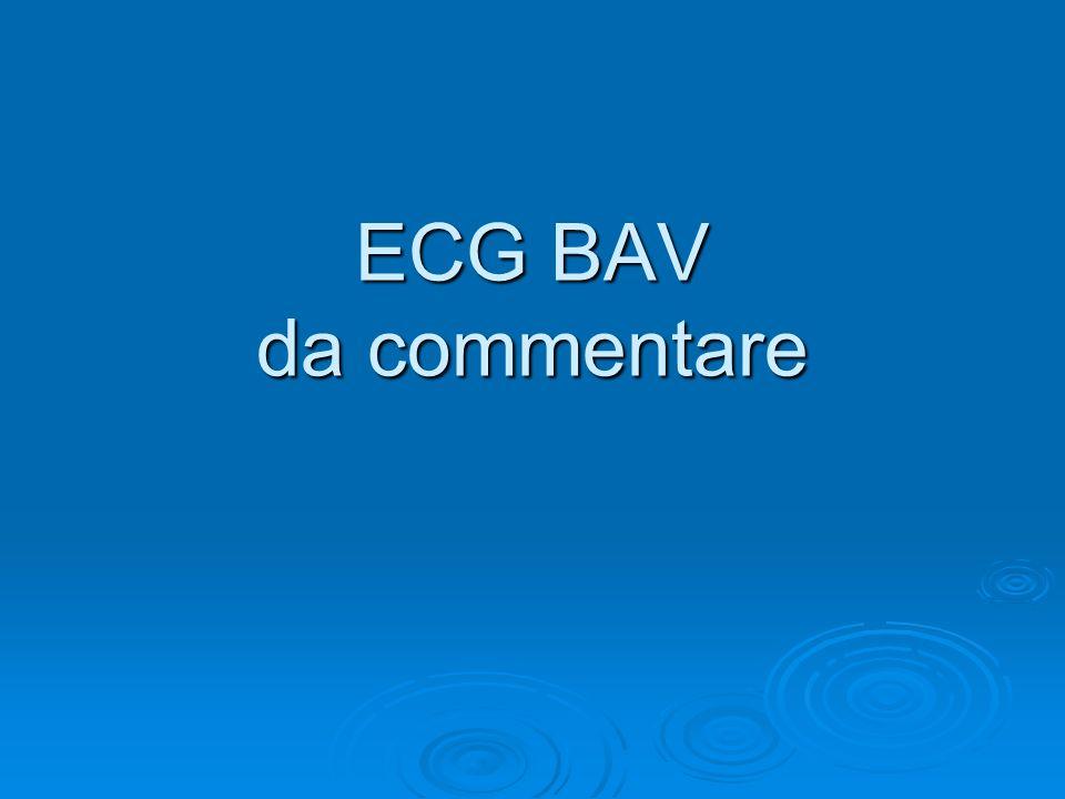 ECG BAV da commentare