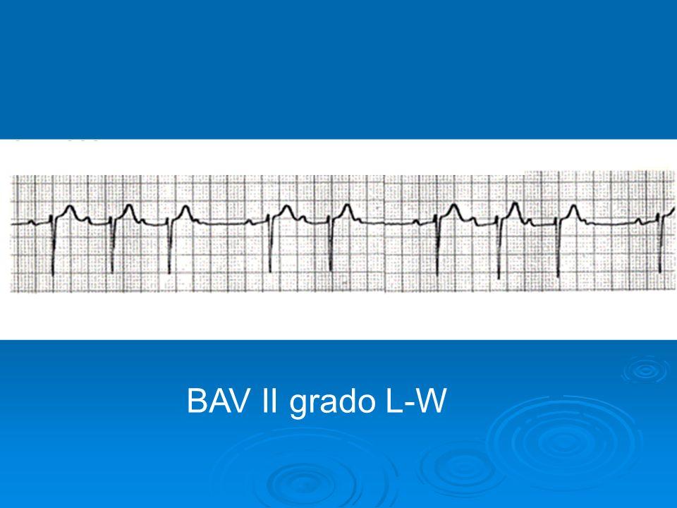 BAV II GRADO LUCIANI-WENCKEBACH BAV II grado L-W