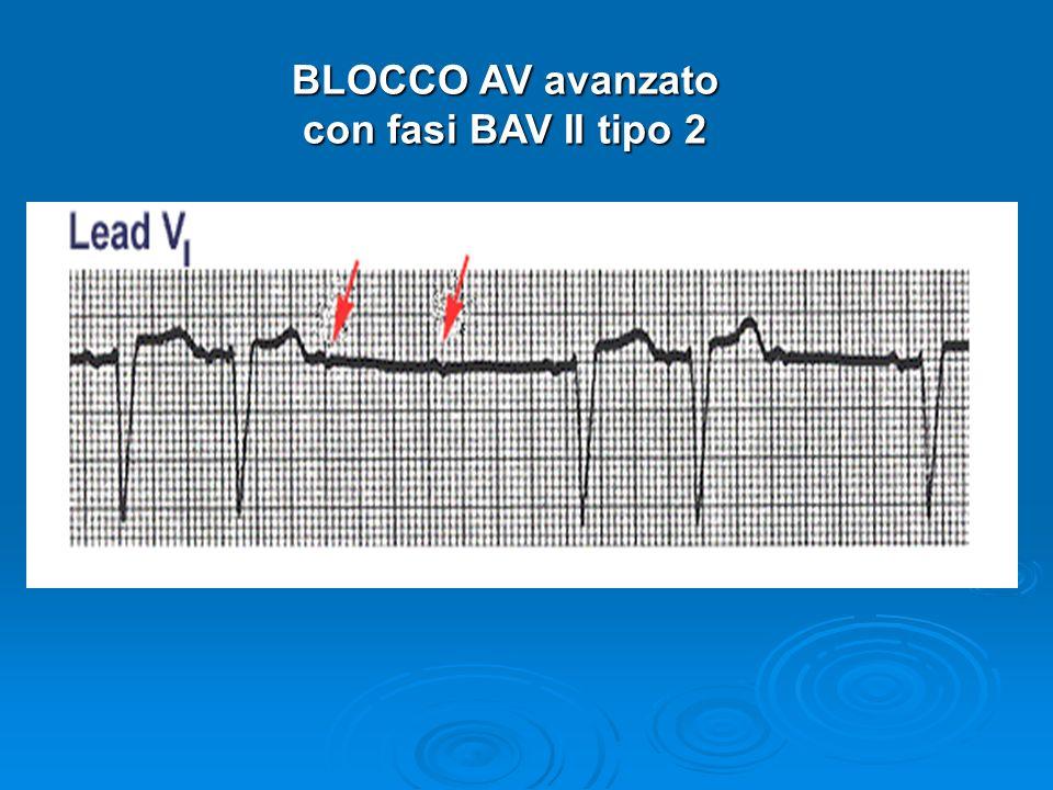 BLOCCO AV avanzato con fasi BAV II tipo 2 con fasi BAV II tipo 2