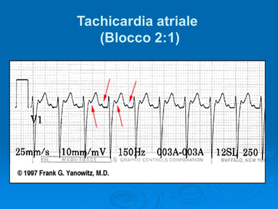 Tachicardia atriale (Blocco 2:1)
