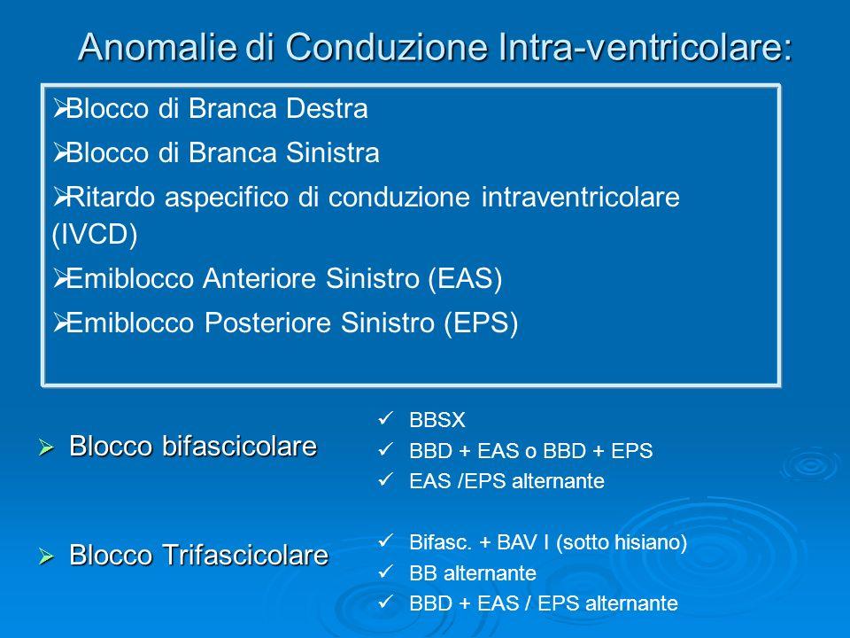 Anomalie di Conduzione Intra-ventricolare: Blocco bifascicolare Blocco bifascicolare Blocco Trifascicolare Blocco Trifascicolare BBSX BBD + EAS o BBD
