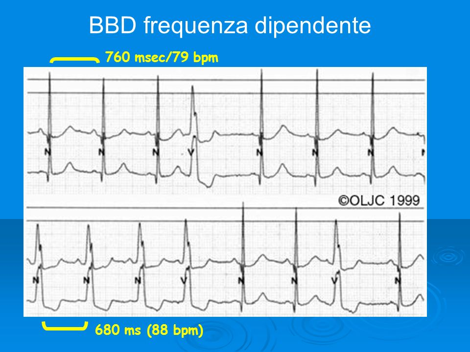 BBD frequenza dipendente 760 msec/79 bpm 680 ms (88 bpm)