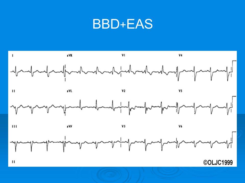 BBD + EAS