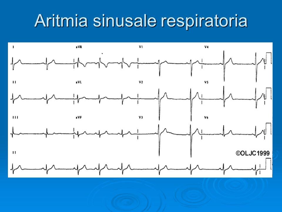 Aritmia sinusale respiratoria