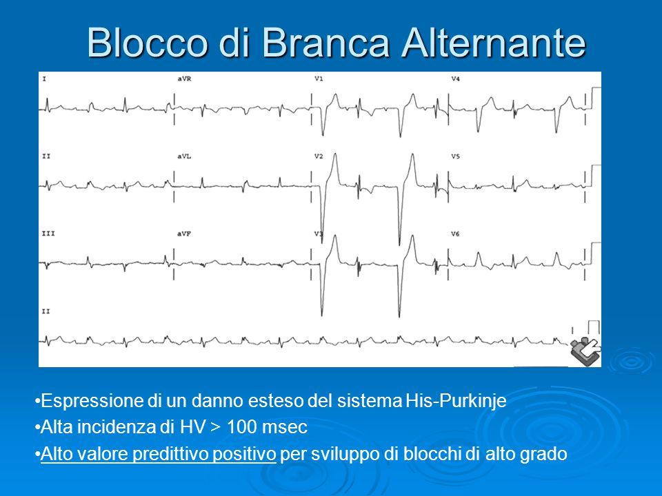 Blocco di Branca Alternante Espressione di un danno esteso del sistema His-Purkinje Alta incidenza di HV > 100 msec Alto valore predittivo positivo pe