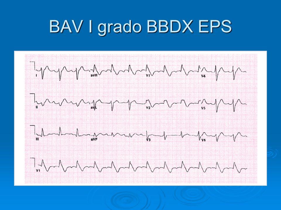 BAV I grado BBDX EPS