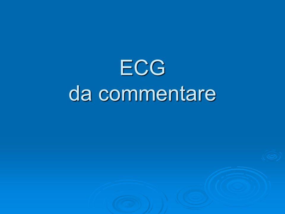 ECG da commentare