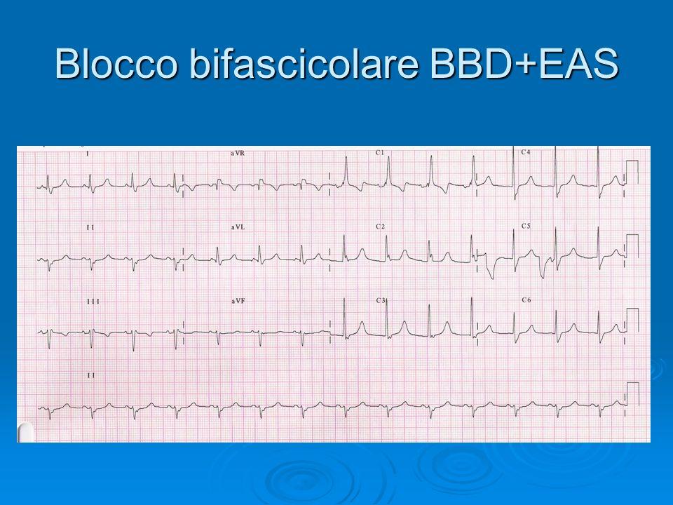Blocco bifascicolare BBD+EAS