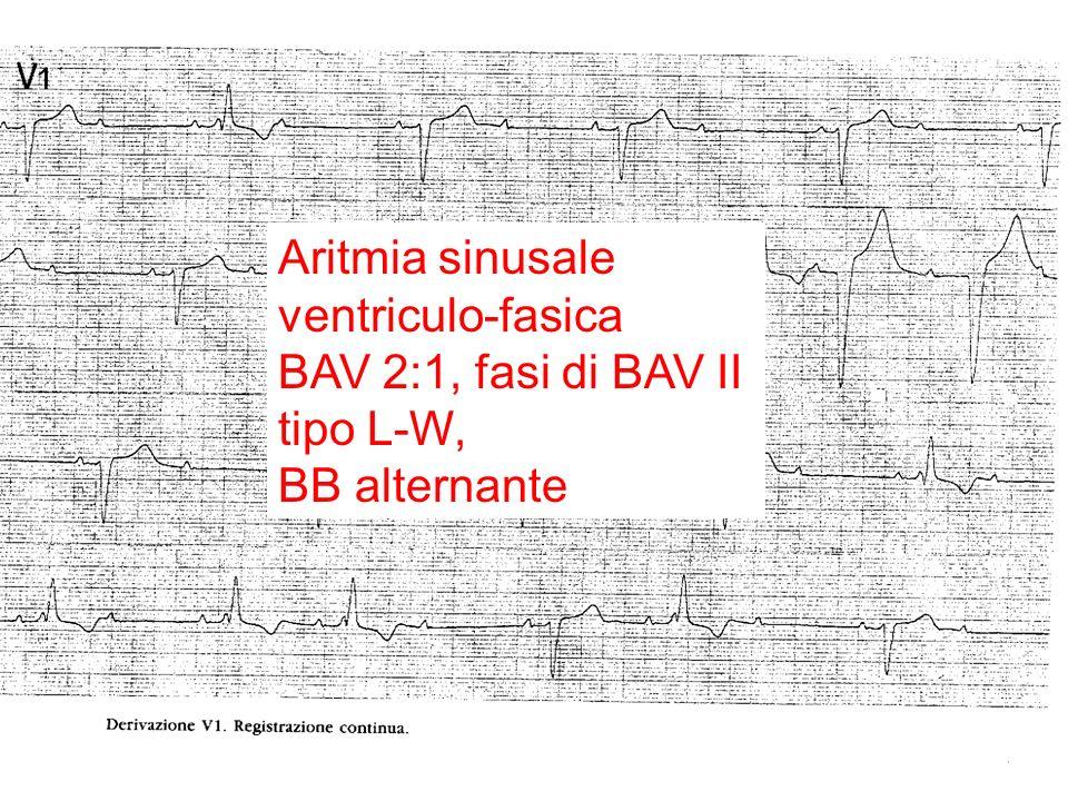 Aritmia sinusale ventriculo-fasica BAV 2:1, fasi di BAV II tipo L-W, BB alternante