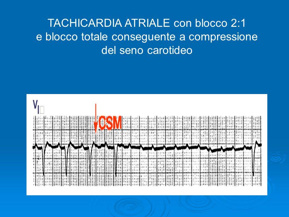 TACHICARDIA ATRIALE con blocco 2:1 e blocco totale conseguente a compressione del seno carotideo