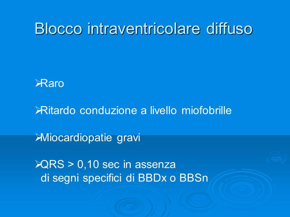 Blocco intraventricolare diffuso Raro Ritardo conduzione a livello miofobrille Miocardiopatie gravi QRS > 0,10 sec in assenza di segni specifici di BB