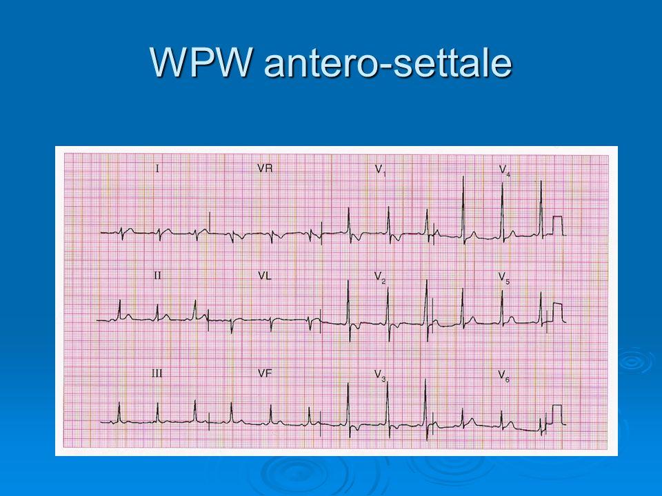 WPW antero-settale