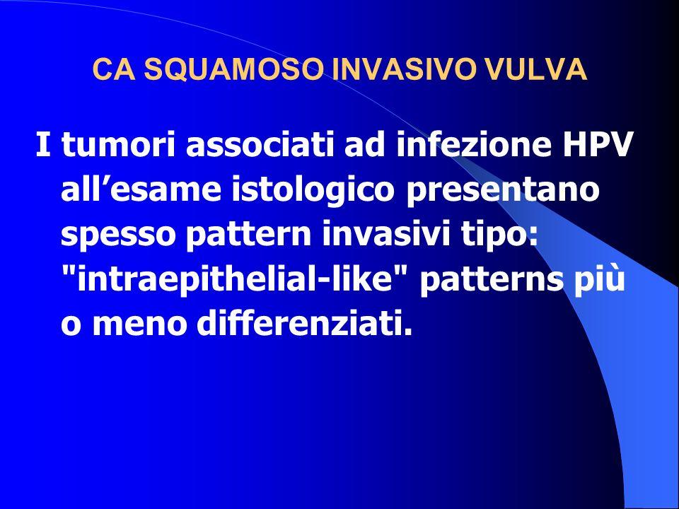 CA SQUAMOSO INVASIVO VULVA I tumori associati ad infezione HPV allesame istologico presentano spesso pattern invasivi tipo: