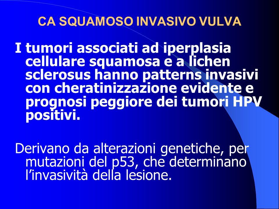 CA SQUAMOSO INVASIVO VULVA I tumori associati ad iperplasia cellulare squamosa e a lichen sclerosus hanno patterns invasivi con cheratinizzazione evid