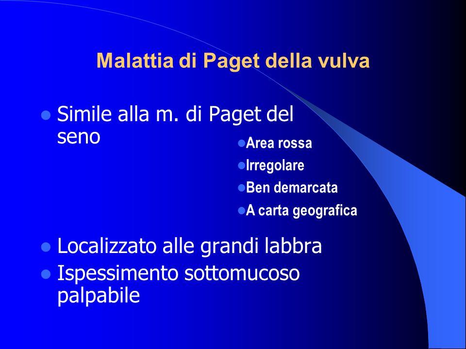 Malattia di Paget della vulva Simile alla m. di Paget del seno Localizzato alle grandi labbra Ispessimento sottomucoso palpabile Area rossa Irregolare
