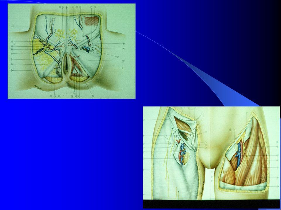 CA SQUAMOSO INVASIVO VULVA I tumori associati ad iperplasia cellulare squamosa e a lichen sclerosus hanno patterns invasivi con cheratinizzazione evidente e prognosi peggiore dei tumori HPV positivi.