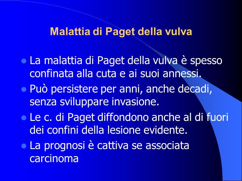 Malattia di Paget della vulva La malattia di Paget della vulva è spesso confinata alla cuta e ai suoi annessi. Può persistere per anni, anche decadi,