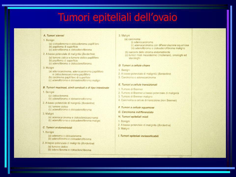 Tumori epiteliali dellovaio