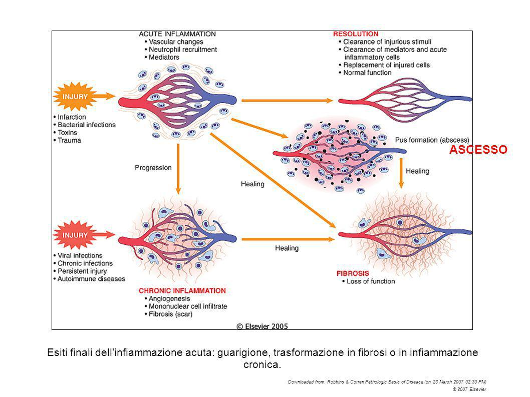 Esiti finali dell'infiammazione acuta: guarigione, trasformazione in fibrosi o in infiammazione cronica. Downloaded from: Robbins & Cotran Pathologic