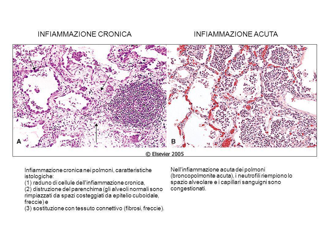 Infiammazione cronica nei polmoni, caratteristiche istologiche: (1) raduno di cellule dell'infiammazione cronica, (2) distruzione del parenchima (gli