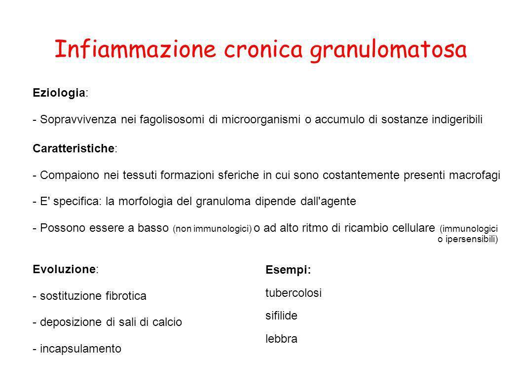 Infiammazione cronica granulomatosa Eziologia: - Sopravvivenza nei fagolisosomi di microorganismi o accumulo di sostanze indigeribili Caratteristiche: