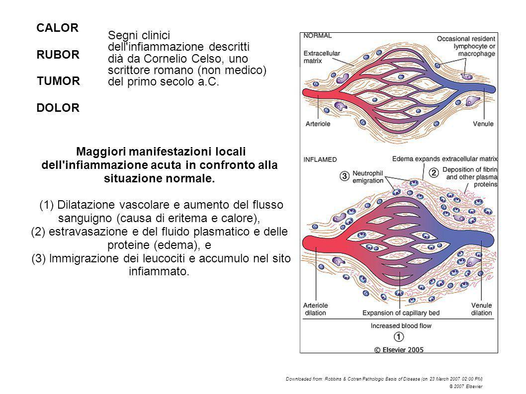 Maggiori manifestazioni locali dell'infiammazione acuta in confronto alla situazione normale. (1) Dilatazione vascolare e aumento del flusso sanguigno