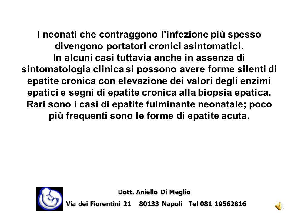HIV Dott.Aniello Di Meglio Dott.
