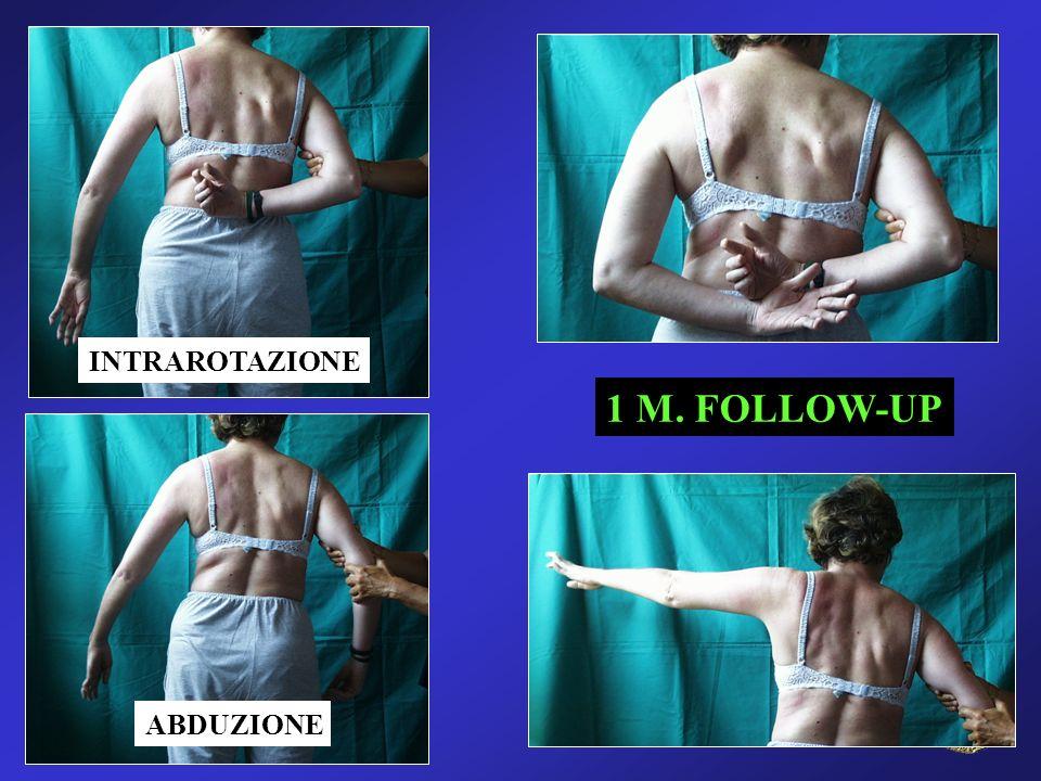 INTRAROTAZIONE ABDUZIONE 1 M. FOLLOW-UP
