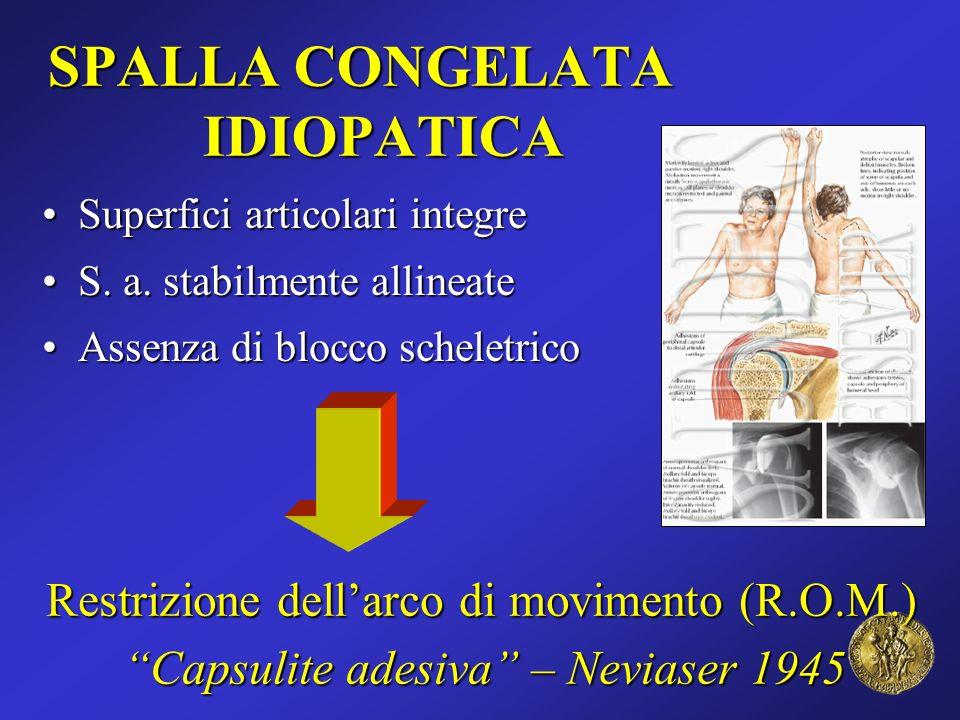 SPALLA CONGELATA IDIOPATICA Superfici articolari integreSuperfici articolari integre S. a. stabilmente allineateS. a. stabilmente allineate Assenza di