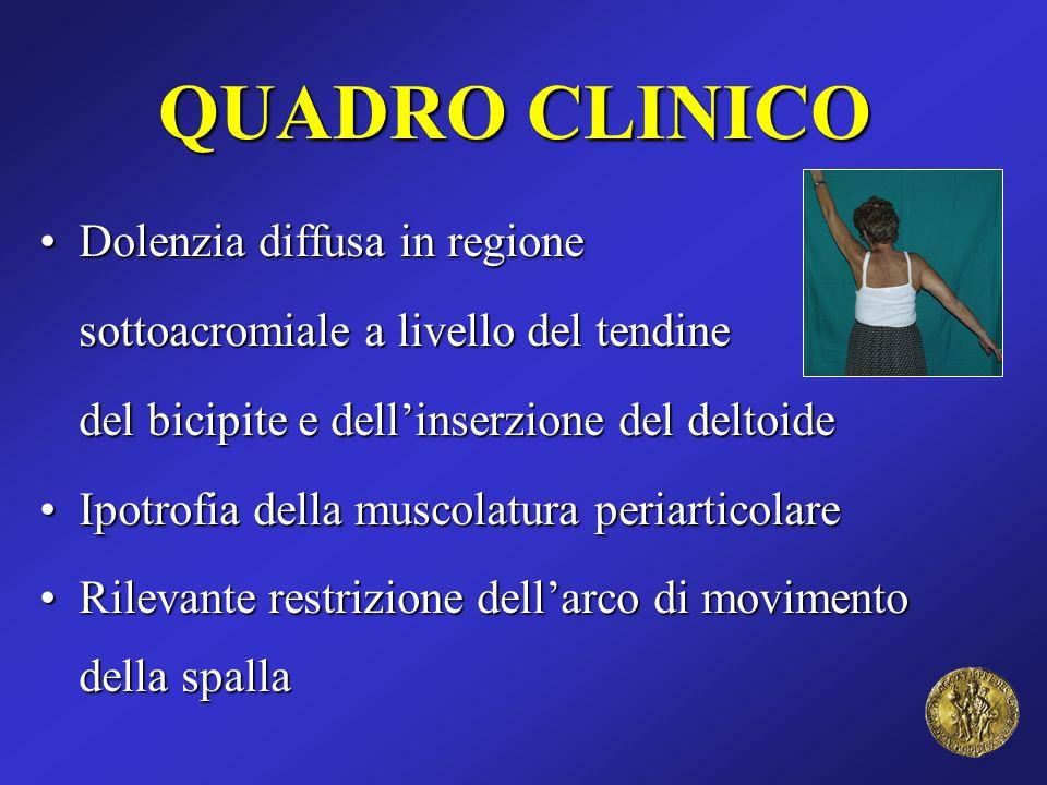 QUADRO CLINICO Dolenzia diffusa in regioneDolenzia diffusa in regione sottoacromiale a livello del tendine del bicipite e dellinserzione del deltoide