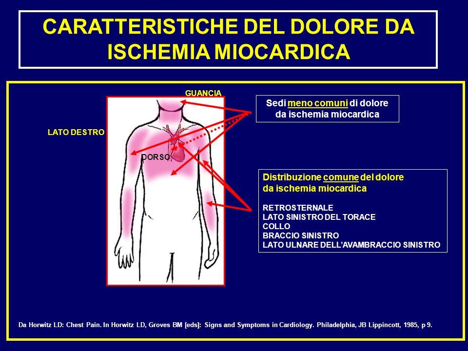 Distribuzione comune del dolore da ischemia miocardica RETROSTERNALE LATO SINISTRO DEL TORACE COLLO BRACCIO SINISTRO LATO ULNARE DELLAVAMBRACCIO SINIS