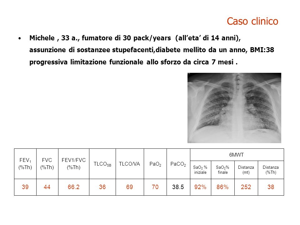 Caso clinico Michele, 33 a., fumatore di 30 pack/years (alleta di 14 anni), assunzione di sostanzee stupefacenti,diabete mellito da un anno, BMI:38 pr