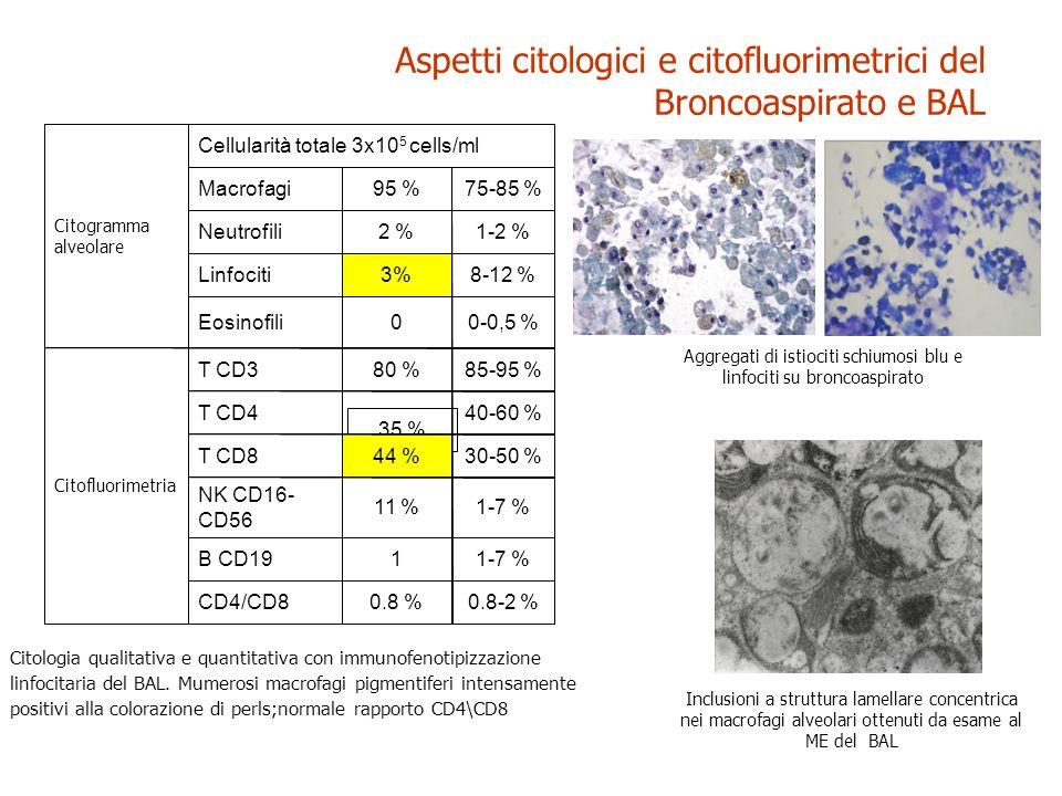 Citologia qualitativa e quantitativa con immunofenotipizzazione linfocitaria del BAL. Mumerosi macrofagi pigmentiferi intensamente positivi alla color