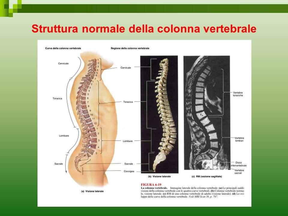 Struttura normale della colonna vertebrale